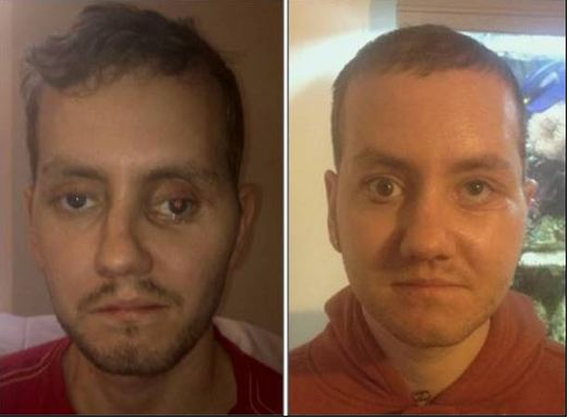 3D printing technologies helped to rebuild man's face after motorbike crash