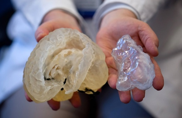 3D printed body parts help doctors better prepare for real surgeries