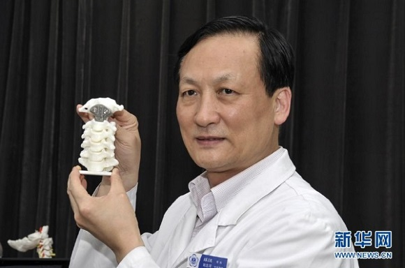 The first 3D printed vertebra replacement surgery was performed in China