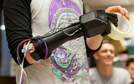 3D printed bionic hand fits perfectly well