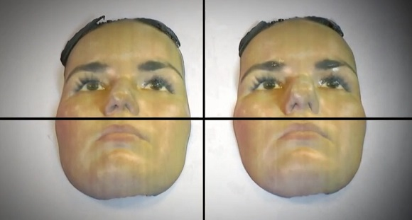 Rhinoplasty patients can get realistic 3D printed before and after surgery images