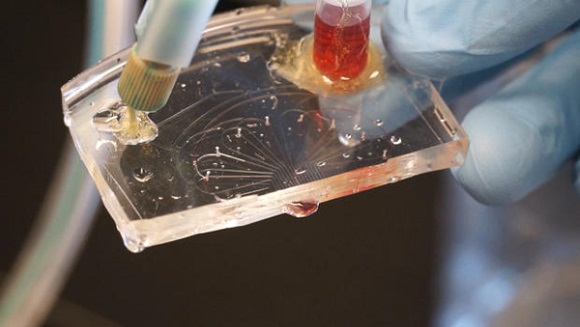 Burn treatment can be revolutionized by PrintAlive 3D bioprinter