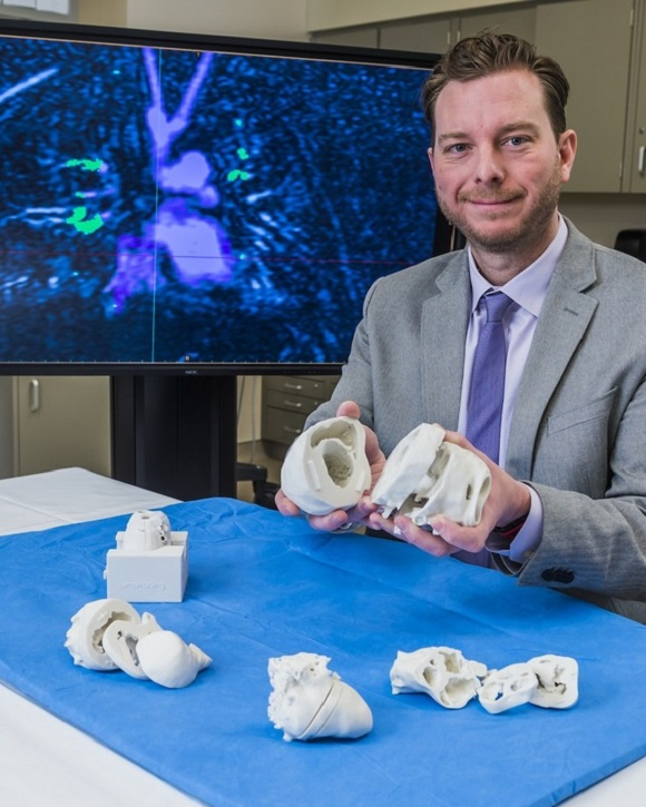 Cardiac research and surgeries move forward with 3D printed sensors