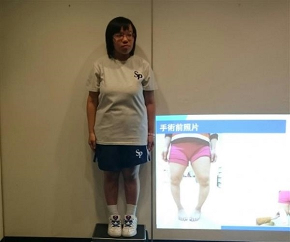Hong Kong doctors help treat patients with bow legs using 3D Printing