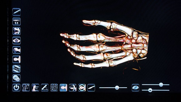 Future: Soldiers may have their bones 3D printed and implanted in case of injury