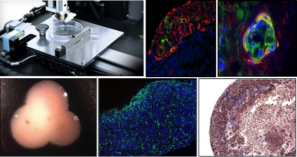 First 3D Bioprinted Kidney Tissue From Organovo