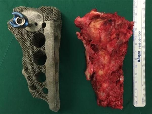 South Korea's pioneering 3D printed pelvic implant surgery
