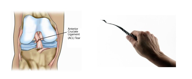 3D Printed Surgical Tool Helps ACL Surgical Procedures