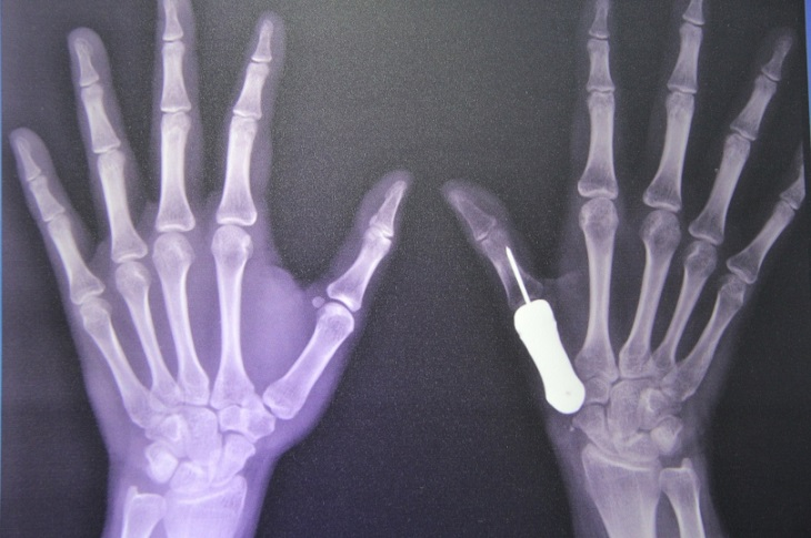 The World's First 3D-Printed Titanium Thumb Successfully Used on a Cancer Patient by Thai Surgeons