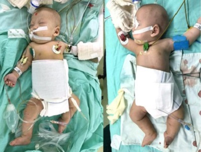 Conjoined Twins Successfully Separated in China Using 3D Printing