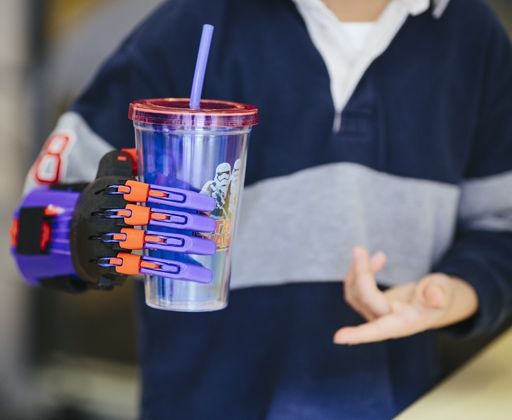 The Use of 3D Printing in Creating Prosthetic Hands