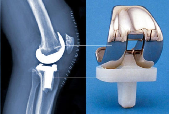 3D Printer Used in Creating Bone and Joint Implants